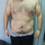 abdomenoplastika1