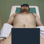 abdomenoplastika4
